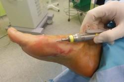 Hallux Valgus-Juanete: Cirugía percutánea (MIS)