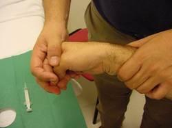 Tendinopatía-tendinitis