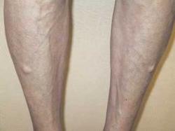 Lesiones isquiotibiales
