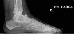 Síndrome del os trigonum