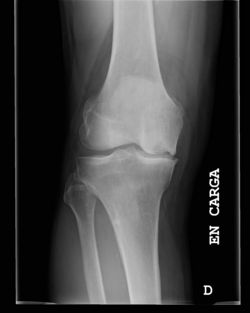 Osteonecrosis Rodilla