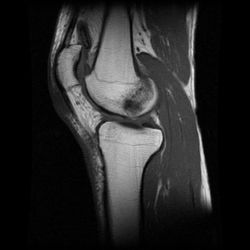 Edema óseo - Contusión ósea