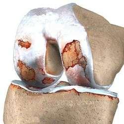 Lesión Cartilago