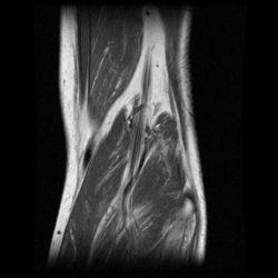 Rotura fibras musculares
