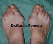 Traumatología y cirugía del pie y tobillo en Santander y Granada. Cirugía del pie