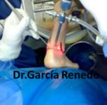 Traumatología y cirugía del pie y tobillo en Santander y Granada. Artroscopia