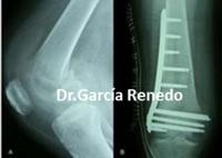 Traumatología y cirugía del pie y tobillo en Santander y Granada. Cirugía de Rodilla