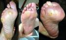 Metatarsalgia. Callosidades-Durezas en la planta del pie