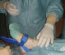 Artroscopia de tobillo