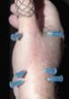Artroscopia de pequeñas articulaciones